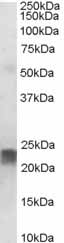 Western blot - Anti-SM22 alpha antibody (ab10135)