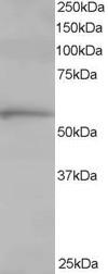 Western blot - Anti-TCP1 alpha antibody (ab10180)