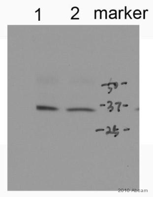 Western blot - Anti-Cardiac Troponin T antibody [1F11] (ab10214)