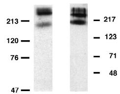 Western blot - Anti-Metabotropic Glutamate Receptor 6 antibody (ab10314)