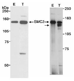 Western blot - Anti-SMC2 antibody (ab10412)
