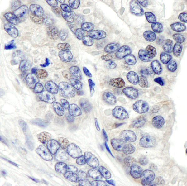 Immunohistochemistry (Formalin/PFA-fixed paraffin-embedded sections) - Anti-CSN1 antibody (ab10413)