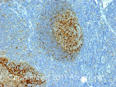 Immunohistochemistry (Formalin/PFA-fixed paraffin-embedded sections) - Anti-Cystatin A antibody [WR-23/2/3/3] (ab10442)