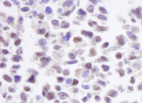 Immunohistochemistry (Formalin/PFA-fixed paraffin-embedded sections) - Anti-CKII alpha antibody (ab10468)