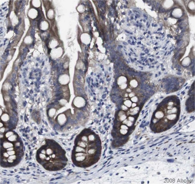 Immunohistochemistry (Formalin/PFA-fixed paraffin-embedded sections) - HPRT antibody (ab10479)