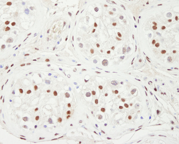 Immunohistochemistry (Formalin/PFA-fixed paraffin-embedded sections) - Anti-KAT13C / NCOA2 antibody (ab10508)