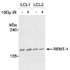 Western blot - Anti-RENT1/hUPF1 antibody (ab10510)