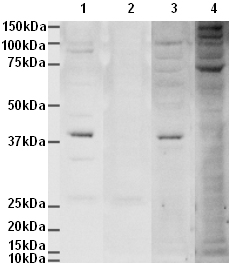 Western blot - Anti-Aurora B antibody [mAbcam 10735] (ab10735)