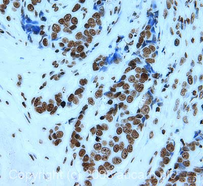 Immunohistochemistry (Formalin/PFA-fixed paraffin-embedded sections) - Anti-Histone H3 antibody [mAbcam 10799] - ChIP Grade (ab10799)
