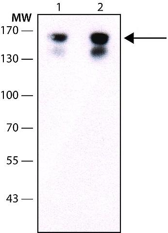 Western blot - Anti-VEGF Receptor 2 antibody [KDR-2 or 260.4] (Biotin) (ab10975)
