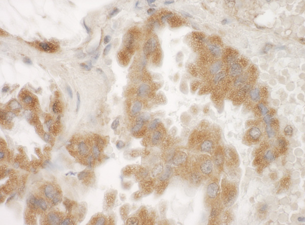 Immunohistochemistry (Formalin/PFA-fixed paraffin-embedded sections) - Anti-FAM82A2 antibody (ab100802)