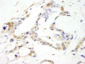 Immunohistochemistry (Formalin/PFA-fixed paraffin-embedded sections) - Anti-CPSF2 antibody (ab100807)