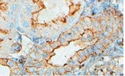Immunohistochemistry (Formalin/PFA-fixed paraffin-embedded sections) - Anti-ACTBL2 antibody (ab100869)