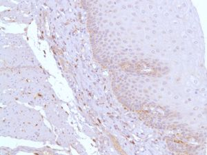 Immunohistochemistry (Formalin/PFA-fixed paraffin-embedded sections) - Anti-CD163 antibody [SP96] - N-terminal, prediluted (ab100911)