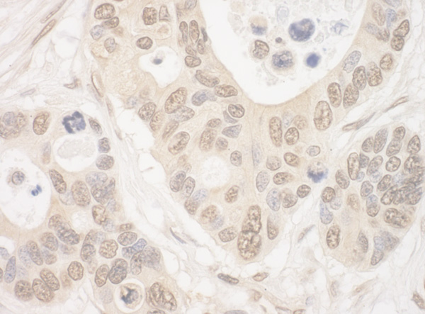 Immunohistochemistry (Formalin/PFA-fixed paraffin-embedded sections) - Anti-ELF2 antibody (ab100917)