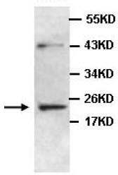 Western blot - Anti-ZC4H2 antibody (ab100924)