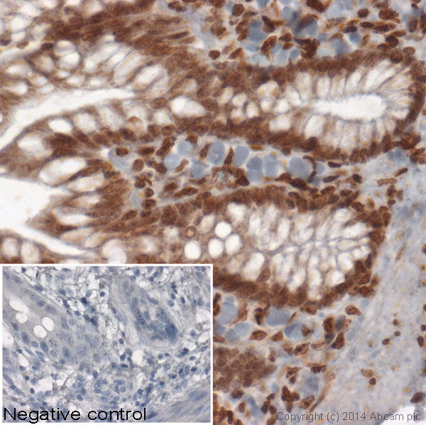 Immunohistochemistry (Formalin/PFA-fixed paraffin-embedded sections) - Anti-Histone H1.01 antibody - ChIP Grade (ab100944)