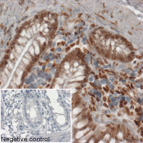 Immunohistochemistry (Formalin/PFA-fixed paraffin-embedded sections) - Anti-Histone H1.11L antibody - ChIP Grade (ab100948)
