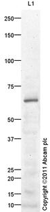 Western blot - Anti-LIPG antibody (ab100987)