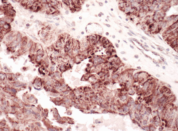 Immunohistochemistry (Formalin/PFA-fixed paraffin-embedded sections) - Anti-GC1q R antibody (ab101268)