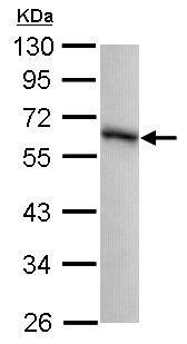 Western blot - Anti-GPKOW antibody (ab101337)