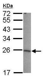 Western blot - Anti-LIN7B antibody (ab101339)