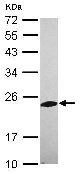 Western blot - Anti-PHOSPHO2 antibody (ab101355)