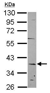Western blot - Anti-C12orf41 antibody (ab101356)