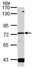 Western blot - Anti-Guanylyl Cyclase alpha 1 antibody (ab101368)