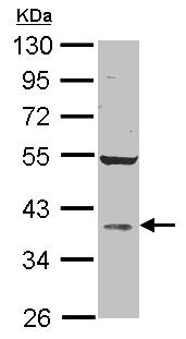 Western blot - Anti-AKR1D1 antibody (ab101393)
