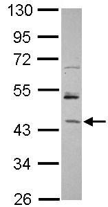 Western blot - Anti-RBM17 antibody (ab101441)