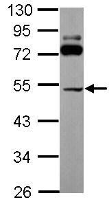 Western blot - Anti-SLC25A23 antibody (ab101444)