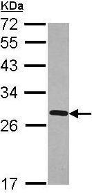 Western blot - Anti-FKBP7 antibody (ab101461)