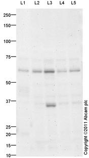 Western blot - Anti-SynCAM antibody (ab101481)