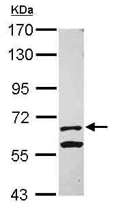 Western blot - Anti-KLHL13 antibody (ab101484)