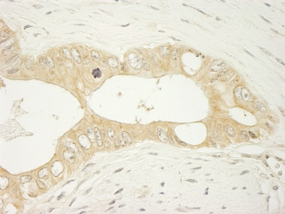 Immunohistochemistry (Formalin/PFA-fixed paraffin-embedded sections) - Anti-LARP1 antibody (ab101490)