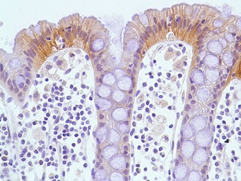Immunohistochemistry (Formalin/PFA-fixed paraffin-embedded sections) - Anti-Met (c-Met) antibody [SP59], prediluted (ab101540)