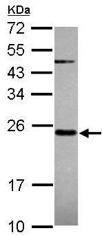 Western blot - Anti-MRPS23 antibody (ab101627)