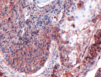 Immunohistochemistry (Formalin/PFA-fixed paraffin-embedded sections) - Anti-CD44 antibody [SP37], prediluted (ab101685)