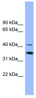 Western blot - Anti-GATA5 antibody (ab101923)