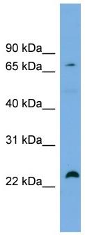 Western blot - Anti-SPG20 antibody (ab101931)