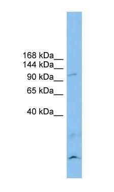Western blot - Anti-CLSTN3 antibody (ab101955)