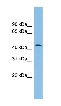 Western blot - Anti-OVCA1 antibody (ab101975)
