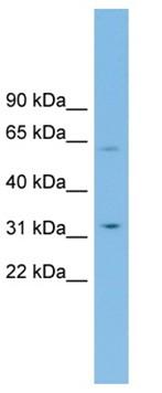 Western blot - Anti-SLC39A9 antibody (ab102030)