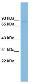 Western blot - Anti-RAI16 antibody (ab102566)