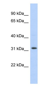 Western blot - Anti-C1orf131 antibody (ab102612)