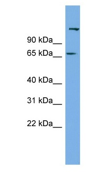 Western blot - Anti-C12ORF4 antibody (ab102615)