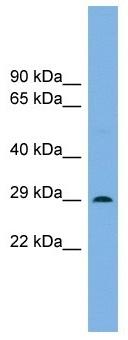 Western blot - Anti-Noto antibody (ab102617)