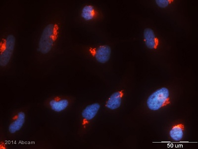 Immunocytochemistry/ Immunofluorescence - Anti-GALNT2 antibody (ab102650)