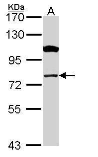 Western blot - Anti-CPT1A antibody (ab102679)